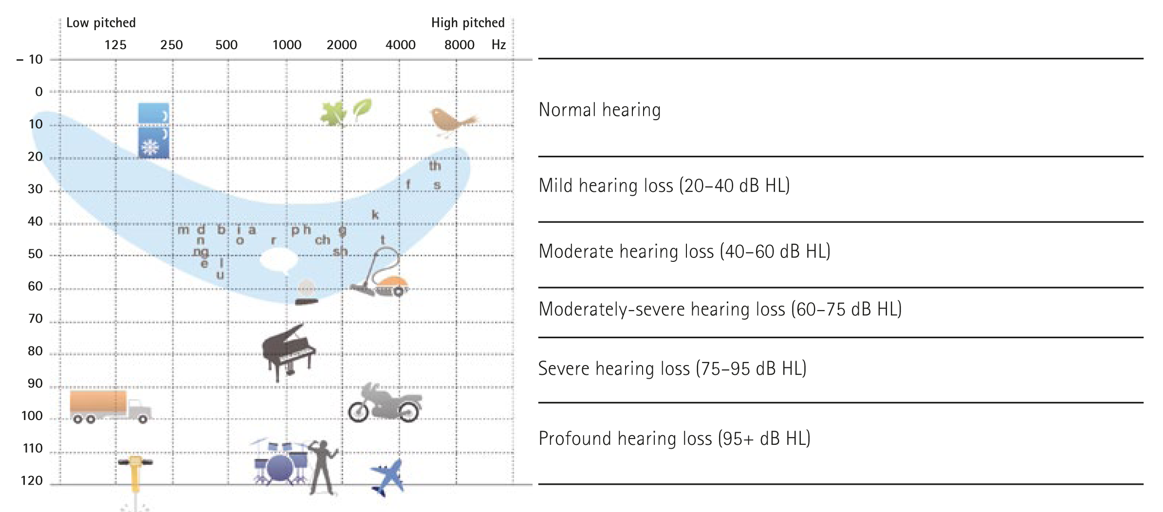 Degree of Hearing Loss Illustration